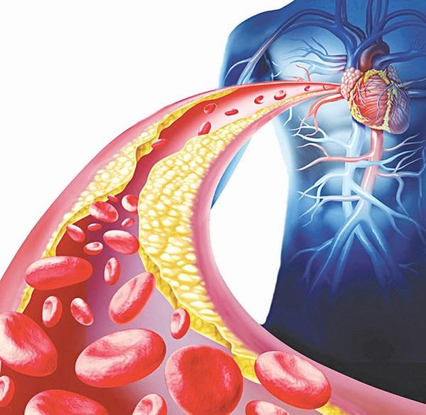 Mỡ máu tăng cao làm giảm sự lưu thông của máu đến tim