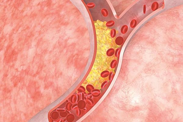 Bệnh mỡ máu kiêng ăn gì