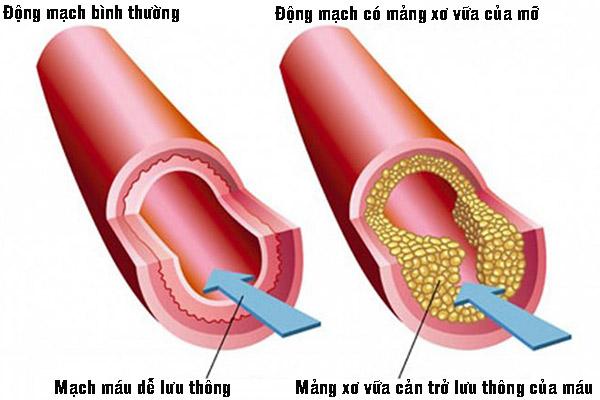 Rối loạn mỡ máu và cách điều trị